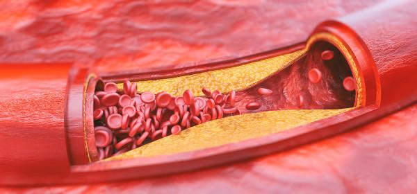 A formação de placas ateroscleróticas provoca o estreitamento da artéria.
